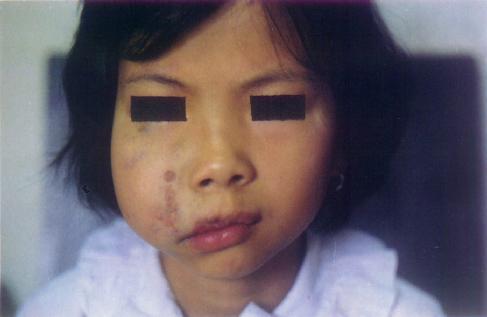 口腔(颜面)巨大血管瘤Nd:YAg laser术后照