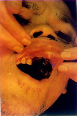 口腔癌术前
