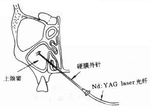 Nd:YAG laser穿刺术